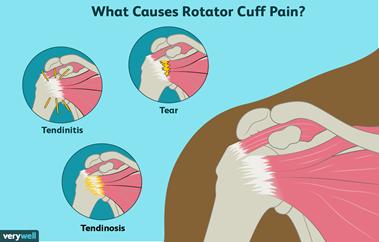 Rotator Cuff Tear/Tendonitis